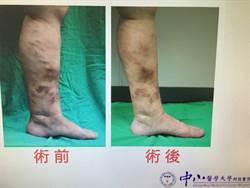 傷口長期潰瘍難癒  竟是靜脈曲張惹禍