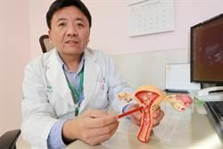 少婦長期月經異常 罹子宮內膜癌切子宮