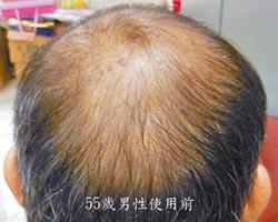 禿頭新希望 米糠變生髮油