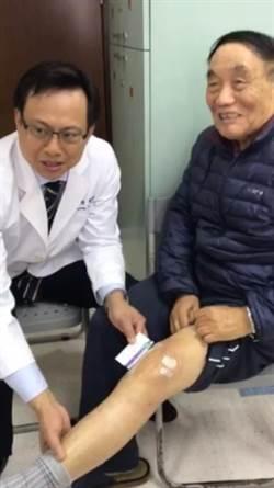 黃鐙樂「新月形」人工膝關節手術 免除拄杖痛苦