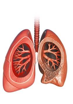 咳嗽逾8周 小心菜瓜布肺
