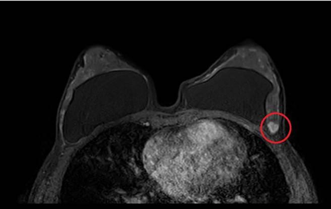 49歲曾隆乳過的這名婦人經磁振造影發現腫瘤。(馮惠宜翻攝)