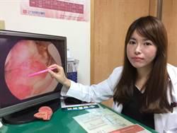 停經婦人不正常出血  子宮內膜癌作祟