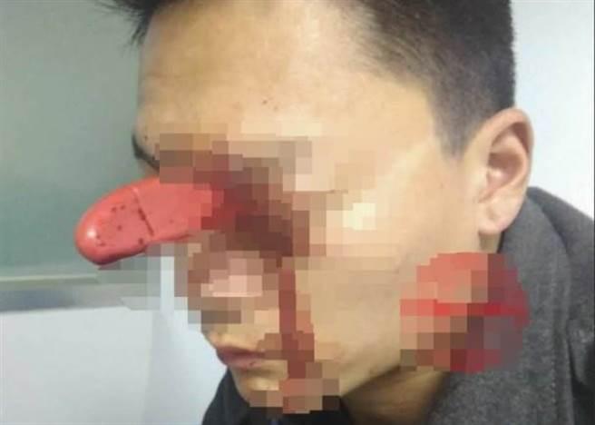 大陸福州一名男子前日不慎遭水果刀直插頭顱。 (圖取自/hk.on)