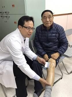 老人膝痛  醫師:吃藥忍耐反而不健康