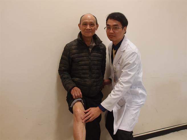 雙和醫院骨科關節及運動醫學特診醫師翁佩韋(右)為膝關節嚴重退化的黃先生施作「脛骨截骨矯正術」治療,保有原有膝關節,如今仍健步如飛。(雙和醫院提供)