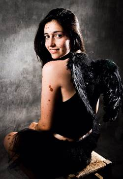 被「黑斑擁抱的天使」遭譏怪胎 她拍寫真秀出真我