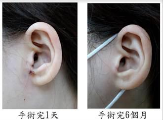 耳朵流湯別輕忽 拖延恐有致命風險
