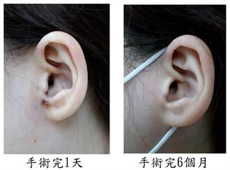 臉歪嘴斜耳流膿 竟是中耳膽脂瘤作怪