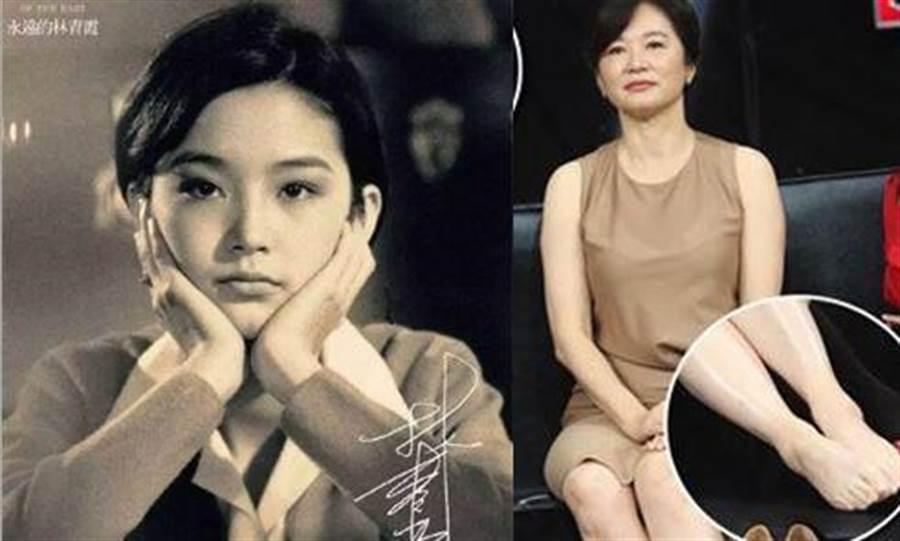 林青霞年輕時清純可愛,現在則有優雅、成熟韻味;而她的美麗,就連腳趾頭都充滿魅力。