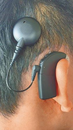 百萬元人工電子耳6月1納健保