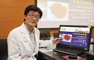 成大醫院內視鏡黏膜下剝離術 能完整剝離大腸腫瘤病灶