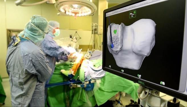 中國附醫透過醫療機器人及3D列印輔助進行關節置換術,微創、精準、恢復快的優點,造福許多病患。(馮惠宜攝)