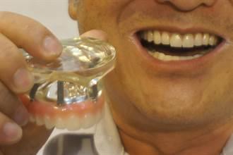 爛牙教授 全口速建5個月讓他重展笑顏