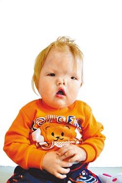鼻子裂兩半 台醫重建蒙古童歡顏