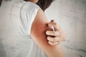 捕蚊效果獲得佛羅里達大學教授認可 聲寶 吸入式捕蚊燈    讓您遠離登革熱