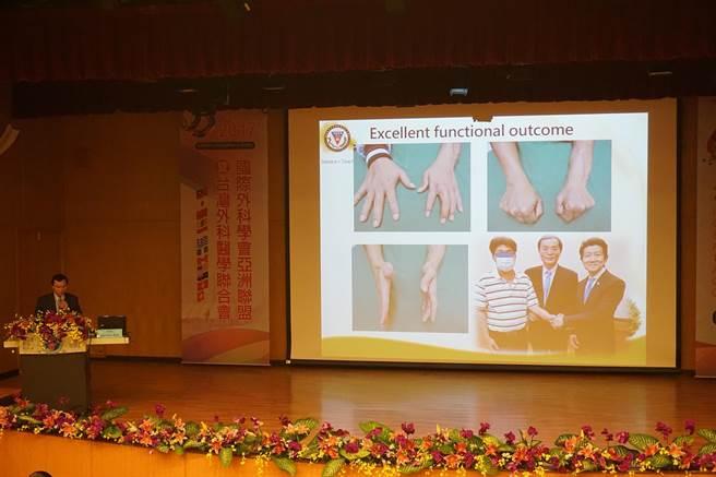 高醫大教授郭耀仁發表手臂移植經驗及病患術後恢復狀況。(柯宗緯攝)