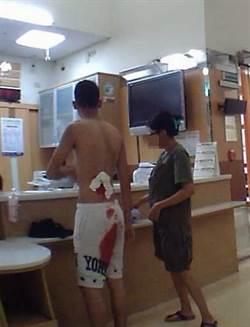 臉盆爆裂少年遭割傷血流如注 警開道速送醫