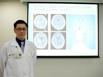 立體定位引流血塊手術 腦出血免開顱新選擇