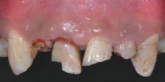 牙齒撞落撞斷怎辦?1小時內就醫保留機率高