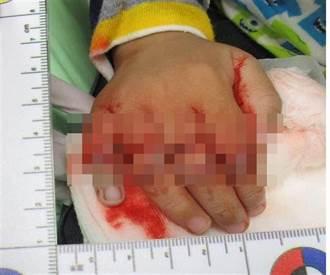 男童觸動飲料封口機 手部嚴重外傷
