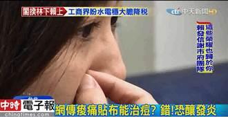 網謠傳痠痛貼布能治痘  醫生:偏方恐釀發炎