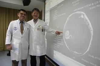 20歲的她和陳立宏一樣得腦癌 已安然度過5年