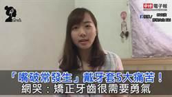 「嘴破常發生」戴牙套5大痛苦! 網哭:矯正牙齒很需要勇氣