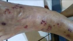 女子爬山膝蓋疼、髖關節痛 原來是「皮蛇」上身
