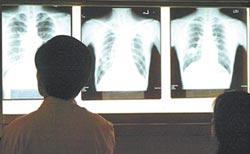 結核病傳染性強 台四季皆有病例