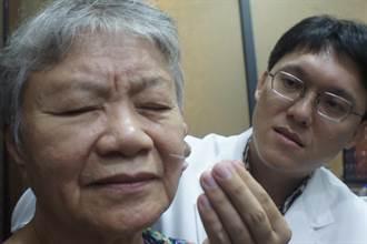 奶奶好有毅力 十個月紮上千針治好臉癱