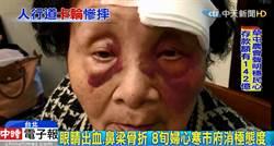 影》人行道2.5公分坑疤害老婦慘摔 家屬控北市消極拒國賠
