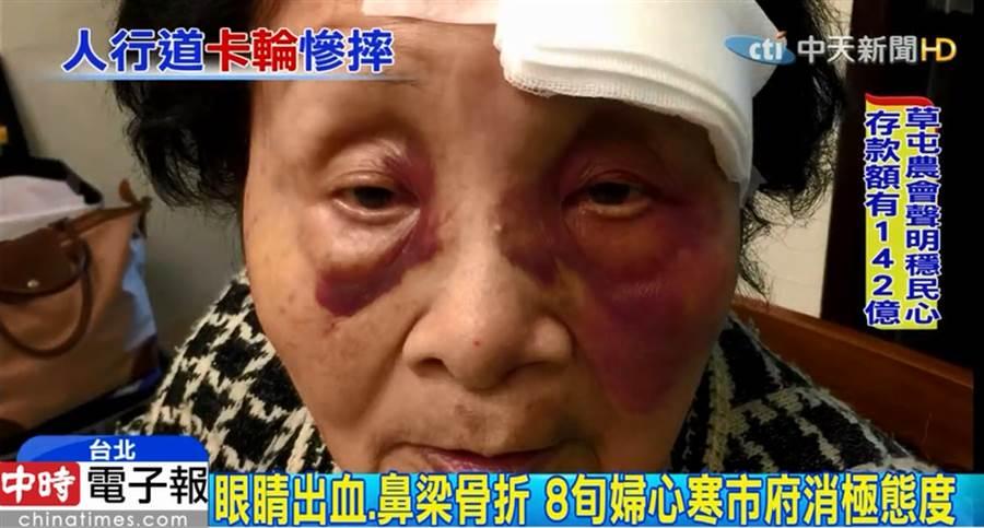 人行道2.5公分坑疤害老婦慘摔 家屬控北市消極拒國賠 (圖片截自影音)