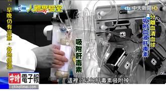 《人體實驗室》肝衰竭等換肝 洗肝機為患者爭取時間
