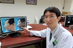 撞擊或隆鼻失敗造成塌鼻 可用肋軟骨重建
