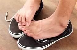 腳臭是警訊!酸臭尿騷味 小心這裡出問題