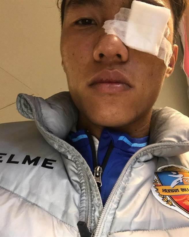 中華隊前鋒陳昭安遭東帝汶肘擊左眼皮受傷,縫了4針。(陳昭安臉書翻攝)