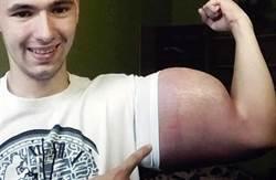 為「大肌肌」不擇手段 俄羅斯男恐截肢保命