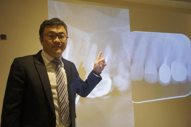 開業牙醫張文信說,牙醫專用電腦斷層可以多面向、多角度蒐集牙根影像,比傳統口腔X光影像更清楚。(馮惠宜攝)