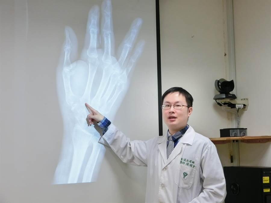 奇美醫學中心風濕免疫科主治醫師陳昭宇,接獲一名40多歲男子罹痛風關節炎7年,1個多月前竟演變痛風石侵蝕右手大拇指,造成肌腱斷裂。(曹婷婷攝)