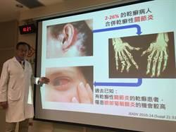 最新研究!不只脫屑發癢 2成乾癬患者還是眼疾高危險群