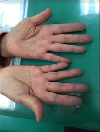 嚇到吃手手!寒流冷到手指發紫 原來是得這病