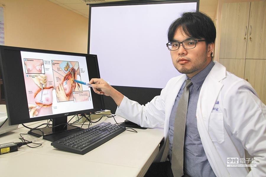 亞大醫院一般外科主治醫師王銘嶼指出,近年來因醫療技術進步,乳癌治療選擇更多樣化,並可幫年輕患者保有生育功能。(林欣儀攝)
