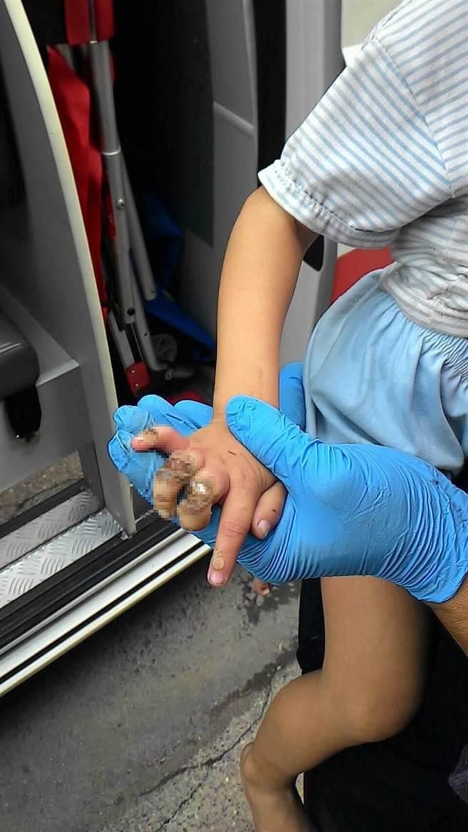 4歲男童手指遭封口機壓傷。(謝佳潾翻攝)
