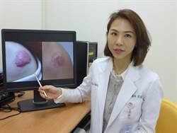 年前皮膚大掃除醫美門診量增2.5成