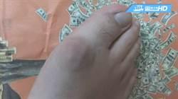 痛風年輕化!15歲少年腳大拇指腫難眠
