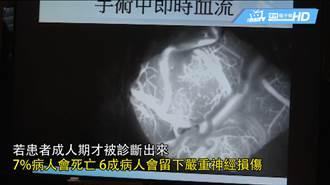 「毛毛樣腦血管病」 好發於亞洲兒童女比男增1.3倍