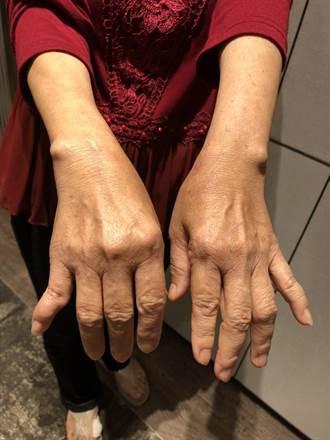 「連抽衛生紙都痛」 她花了20年才找到病因