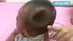 悚!母抱嬰坐副駕車禍 男嬰顱骨撞凹大洞
