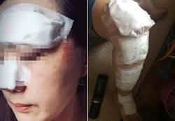 桃、竹驚傳隨機攻擊 2女無辜遭殃臉噴血